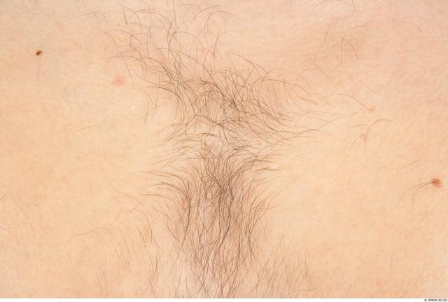 Hairy Skins