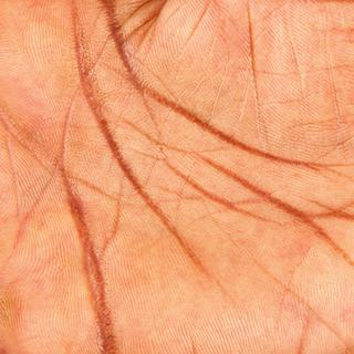 Human Skins